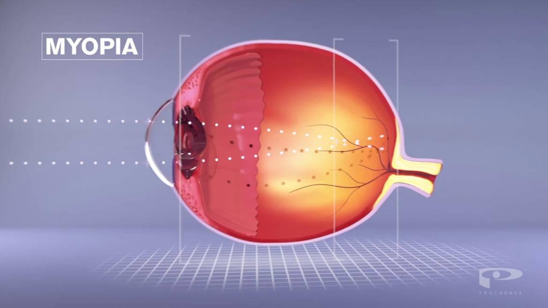 Visual Freedom! Orthokeratology